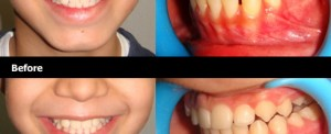 Braces-Treatment