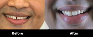 Composite-Diastema-Closure