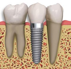 img-implants